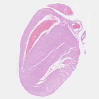 8-Mouse-Heart.aorta-hematoxylin-eosin-staining-150x150