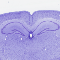 Mouse-Brain-Cresyl-violet-staining-e1410265539162