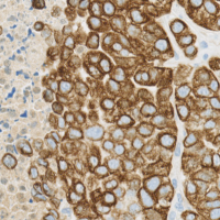 Mouse.human-Xenograft-immunohistchemistry-Vimentin1-e1410265681256