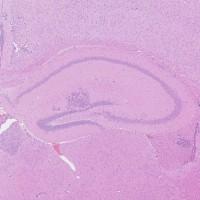 Souris-cerveau-cancéreux-hématoxyline-éosine-histalim-e1410266089246