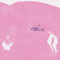 Souris-cerveau-métastasé-Sonde-ALU-histalim-e1410265842291