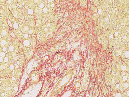 Human-Liver-Sirius-red-Staining-420x315