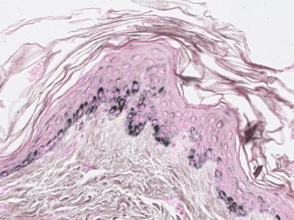 Human-Skin-Fontana-Massons-staining-420x315