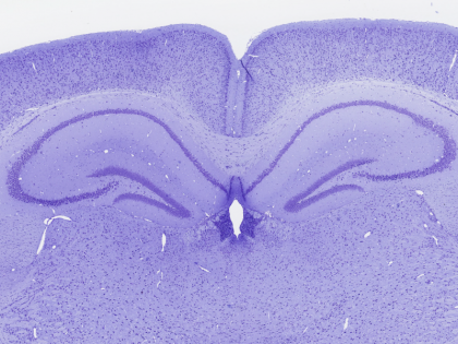 Mouse-Brain-Cresyl-violet-staining-420x315