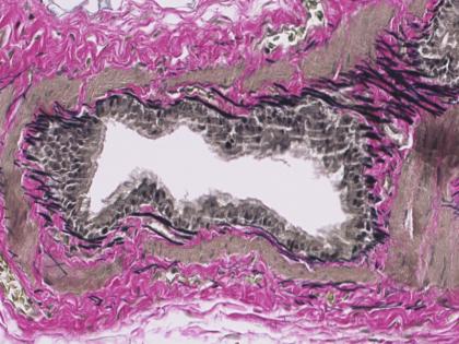Rat-Lung-Verhoeff-staining-420x315