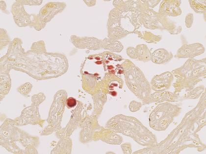 Rouge-Alizarine-Placenta-Humain-420x315