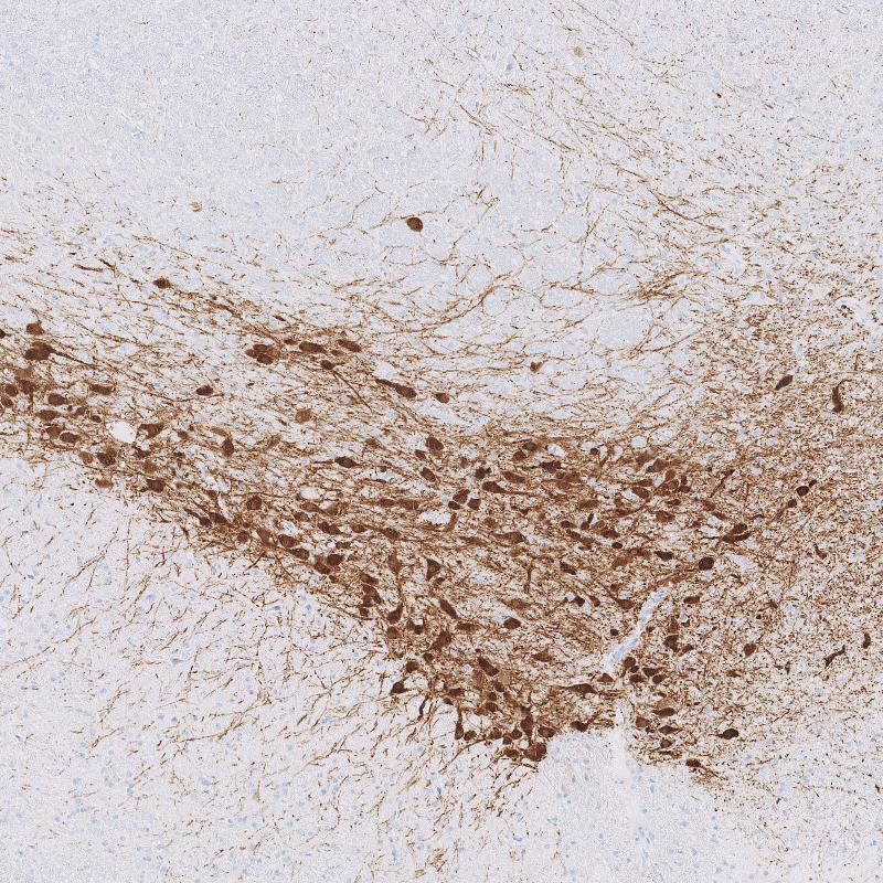 Rat-Brain-Immunohistochemistry-tyrosine-hydroxylase
