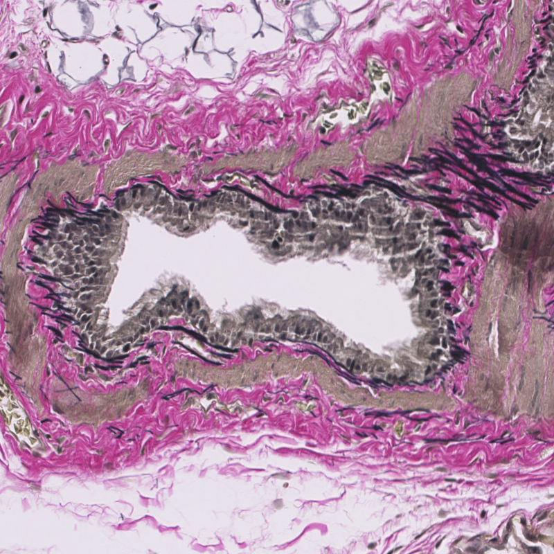 Rat-Lung-Verhoeff-staining